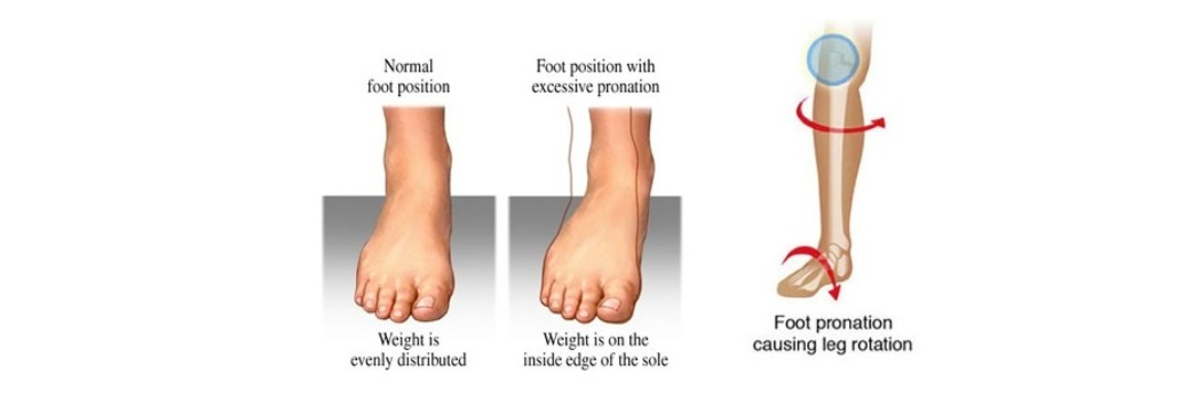 Feet – Your Solid Foundation